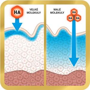 kyselina hyaluronova pouzitie